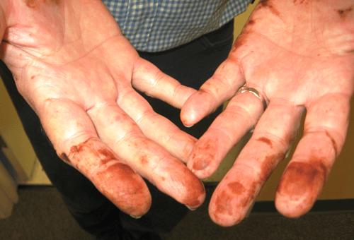Как и чем в домашних условиях отмыть марганцовку с рук и ногтей