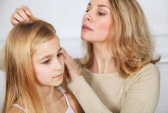 Как быстро вывести вшей и гнид у ребенка в домашних условиях