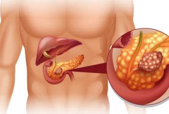 6 продуктов разрушают поджелудочную железу