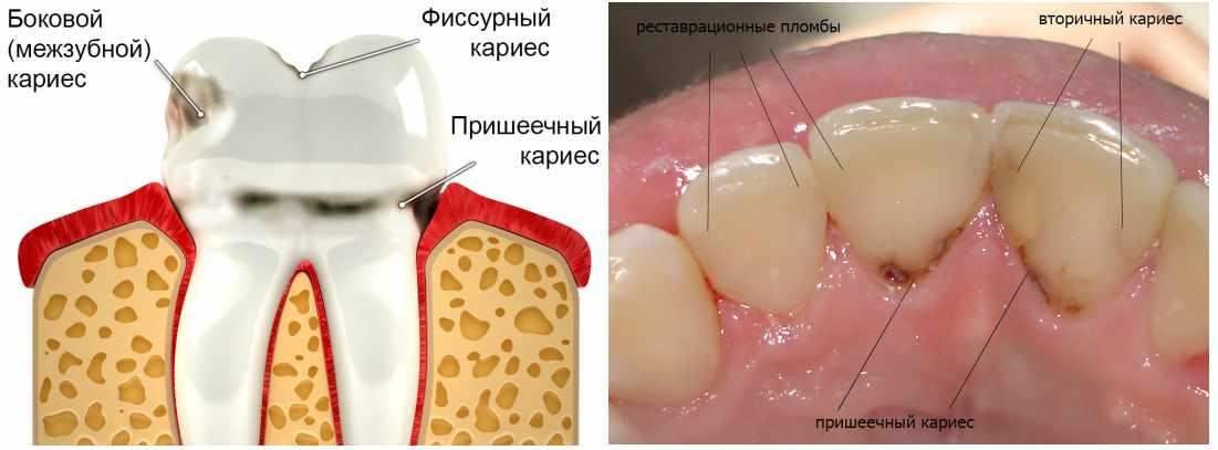 Кариес и разрушение костной ткани