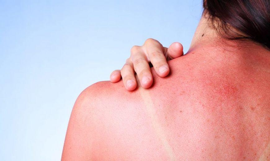 Помощь при солнечных ожогах