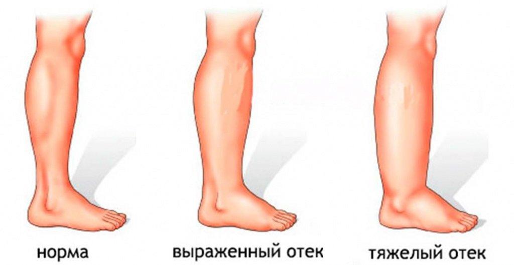 Отечность на ногах