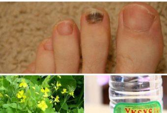 4 проверенных средства от грибка ногтей на ногах