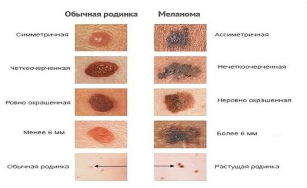 родинки и меланомы