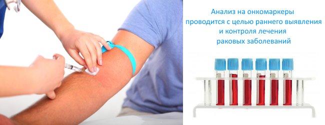 исследование крови