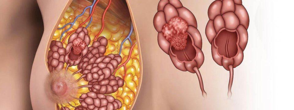 6 скрытых симптомов рака груди, которые должны насторожить