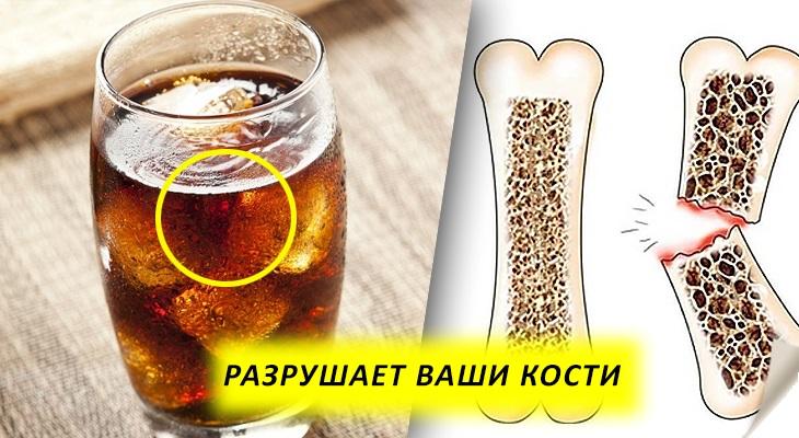 газировка разрушает кости