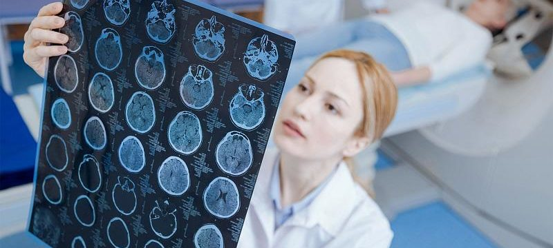 Нейрохирург назвал 3 симптома рака мозга