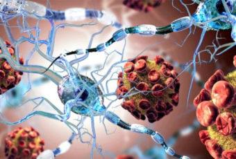 Стволовые клетки вызывают рак? Вся правда