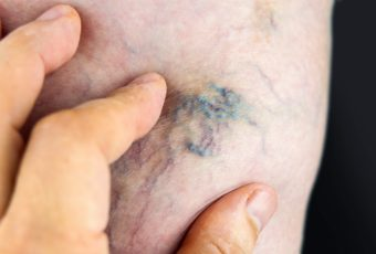 Не пропустите первые симптомы тромба в ноге