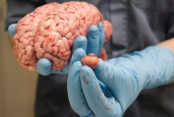 7 симптомов рака головного мозга, которые лучше не игнорировать