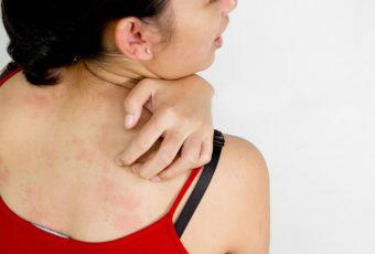 12 внешних признаков опасных заболеваний