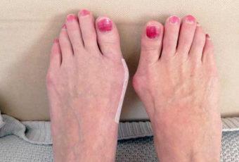 О чем говорят шишки на ноге и насколько они опасны